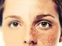どうにかしたい肌荒れ!「ケミカルピーリング」は皮膚科じゃないとダメ?