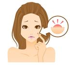 女性・男性共通の悩み!ニキビレス美女のケアの秘訣は新型ビタミンC誘導体「APPS」にあった!