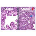 脂質異常症の治療薬「スタチン」が卵巣がんを抑制 - 慶大がマウスで確認
