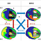 NICTなど、脳の活動を元にした客観的な統合失調症の推定手法を開発