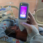 脳性まひの原因となる未熟児の黄疸を採血せずにモニタリング - 神戸大