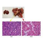 ノーベル賞受賞の「イベルメクチン」が胆管がんの治療に有効 - 九大など