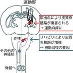 生理研など、脳出血による麻痺がリハビリで回復する仕組みを発見