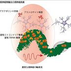 新潟大、多発性硬化症/視神経脊髄炎における神経変成の新たな仕組みを発見