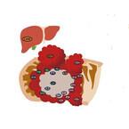 大腸がんは異なる遺伝子変異を持つ不均一な細胞で構成されている - 九州大