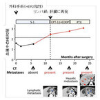 徳島大、胃がん患者に認められるHER2遺伝子増幅を血液で検出する方法を開発