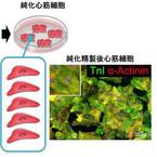 慶大、ヒトiPS細胞から高純度な心筋細胞の作製に成功 - 特殊な培養液を利用