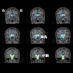 慢性疲労症候群患者では脳内炎症が広い領域で生じている - 理研などが確認
