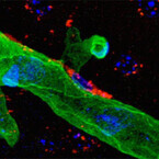 新潟大、脳梗塞治療の血栓溶解療法で起こる合併症の原因タンパク質を特定