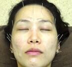 顔中にハリを刺す、美容鍼を試してきた! ほうれい線、生理痛、その結果は…?