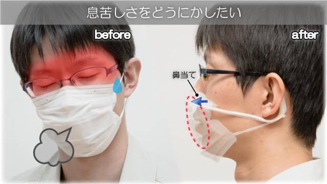 寝起き 耳 が 痛い 寝起き 耳 が 痛い 耳の痛みを症状とする病気は意外と多い!原因や治療法、耳の痛みを感じたときのケア方法は?|医療法人...
