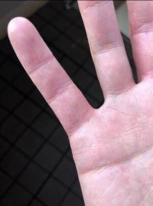 狩野英孝、アレルギー&アトピー性皮膚炎の治療経過公開「小指がパックリ」