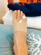 早見優、転倒して足指を骨折「あーん。やってしまいました」