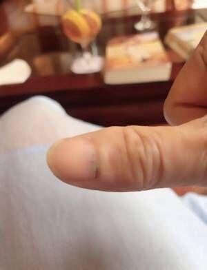 アグネス・チャン、タンスに挟んだ親指を公開「涙が出ました」