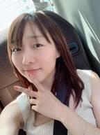 SKE48・須田亜香里、アレルギーによる肌荒れに悩んだ過去「今も日焼け止めも塗れません」