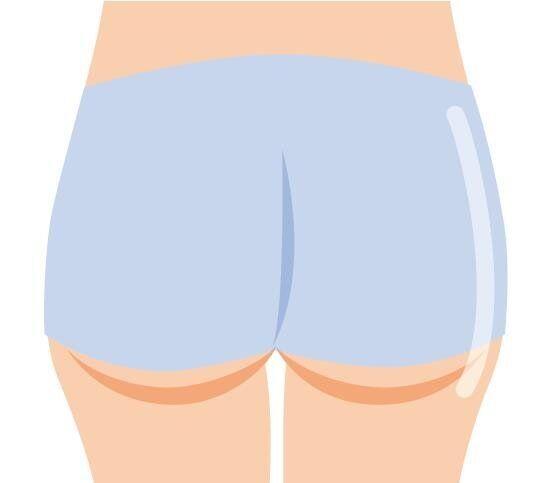 反り腰の姿勢や、座り仕事などでお尻の筋肉が固くなり、筋繊維内の脂肪細胞が肥大。セルライトと化し、デコボコ尻の原因に。