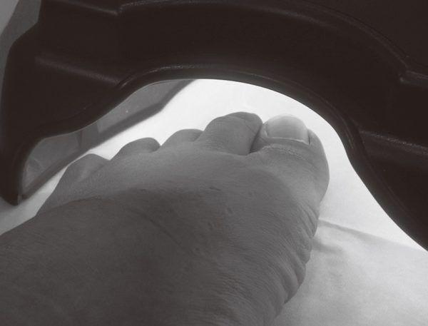 「痛みがない」と好評! 「巻き爪」矯正を最新調査