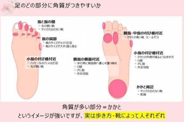 女性の足クサ、水虫増加中!…皮膚科医に聞く「正しい足の洗い方」