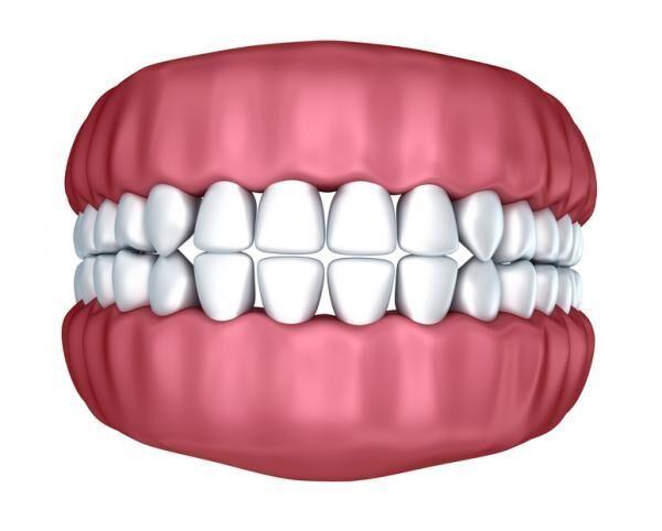 「歯のすきまが気になる…」マツコも受けた、歯茎の移植手術って?