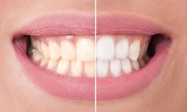 歯のホワイトニングって本当に効果ある!?人によって白くならない「衝撃の事実」が判明