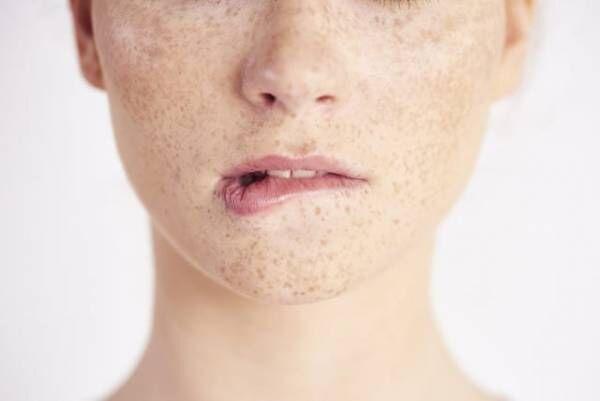 「ときどき敏感肌」さんの美白ケア!dプログラム「ホワイトケア」でシミ・赤みを防ぐ