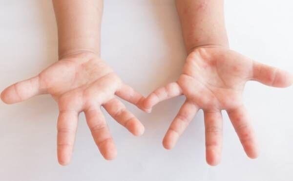 手足口病のイメージ
