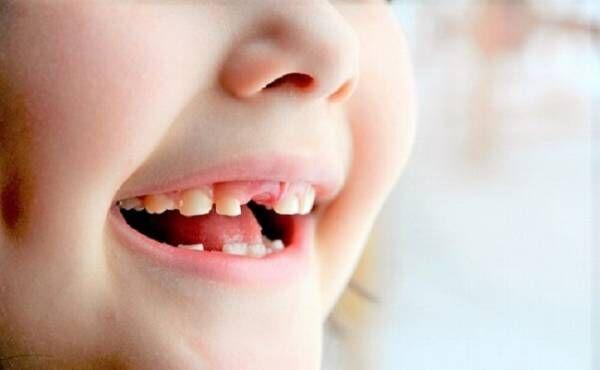 1歳ですべての歯の虫歯と糖尿病を予告された娘【ママの体験談】