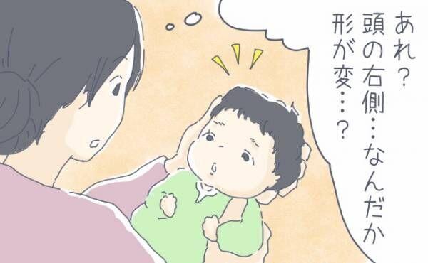 元に戻るの? 吸引分娩で赤ちゃんの頭の形がいびつに…【体験談】