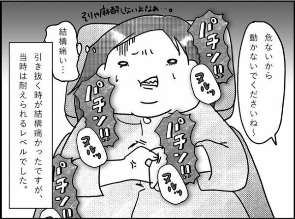「お股が痛い!!」怖いけど…ついに会陰抜糸! #産後レポ12