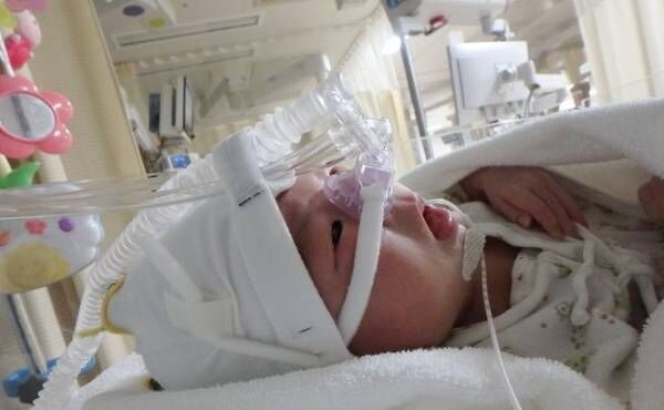 「どうして弟に会えないの?」入院中の息子と姉たちの初対面はガラス越し
