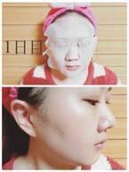 冬の乾燥に『フェイスマスクを1週間試してみたら、肌はどのくらい変わるのか』検証