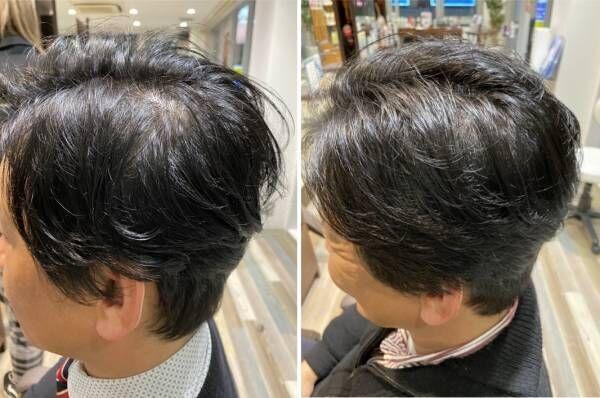ヒト幹細胞培養液 強髪プログラム