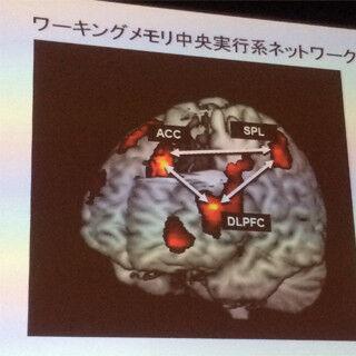 記憶の脳科学 (1) 低下したワーキングメモリ(脳のメモ帳)の機能は強化できるのか?