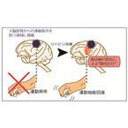 脳損傷で失った運動機能を他の領域が肩代わりすることを確認 - 産総研など