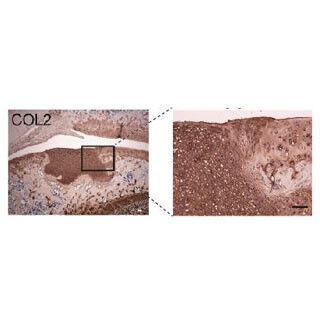 京大、iPS細胞から高品質な軟骨細胞を作製し、硝子軟骨の形成に成功