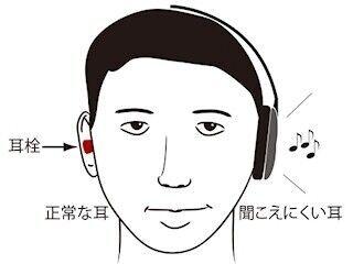 「突発性難聴」になった耳は使えば使うほど回復する - NIPSが新療法を開発