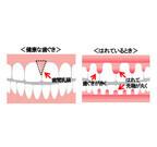 歯周病予防のためにチェックしておくべき3点を歯科医師が解説