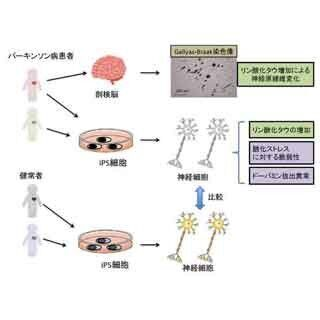 慶大など、パーキンソン病患者由来のiPS細胞を樹立 - 脳内の病態を解明