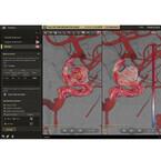 フィリップス、脳動脈血流のリアルタイム画像解析を実現するシステムを発売