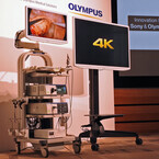 ソニーとオリンパス、4K内視鏡システムを発表- EDレンズやCMOSセンサを搭載