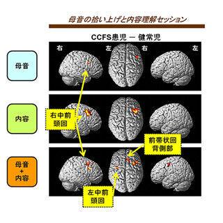 理研、小児慢性疲労症候群の脳活動を測定 - 前頭葉の過活動を確認