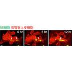 理研、小細胞肺がんの起源となる細胞が塊を作る様子の撮影に成功