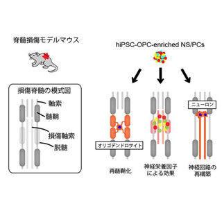慶大、ヒトiPS細胞由来神経幹細胞を用いて脊髄損傷マウスの運動機能を回復