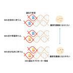 東北大と防衛医大、騒音性難聴には遺伝子「NRF2」の一塩基多型が関与と解明