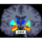 阪大など、統合失調症患者の脳で左右の体積がアンバランスな部位を発見