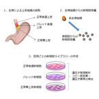 国がん、食道がんの前がん病変で幹細胞を発見