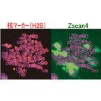 理研、ES細胞がテロメア長を維持することで老化を回避する仕組みを解明