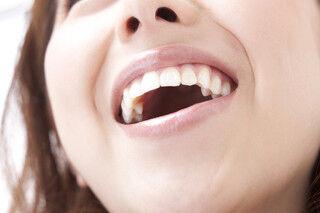 """ワンコインの""""自宅ホワイトニング""""で白い歯と自信ある笑顔を手に入れる!"""