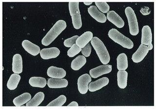 「乳酸菌LS1」の働きにより、被験者約8割で歯周病菌が減少-フレンテ