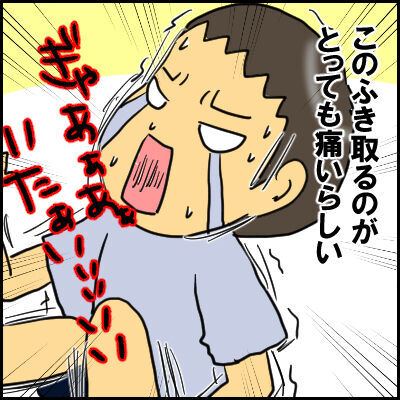 単なる水いぼかと思ったら、高熱が出て入院!?夏の感染症にも気が抜けなかった!の画像